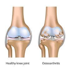 knee unhealthy